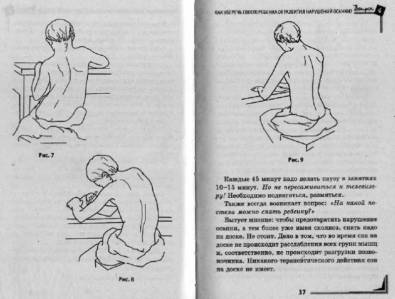 Сколиоз лечение у взрослых в минске